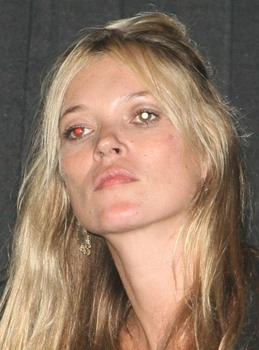 Mystery white blobs up Kate Moss\'s nose....