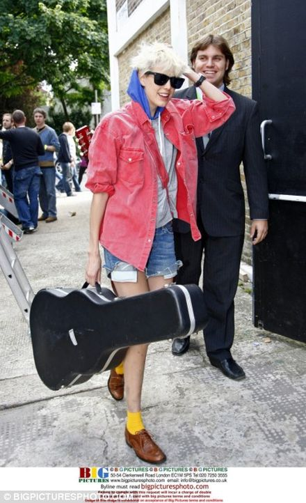 Agyness Deyn reveals unsightly bruised legs after week of non-stop partying