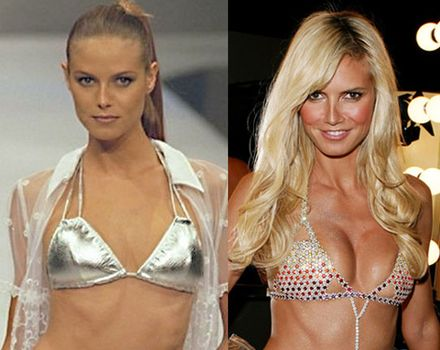 Heidi Klum Lies About Plastic Surgery