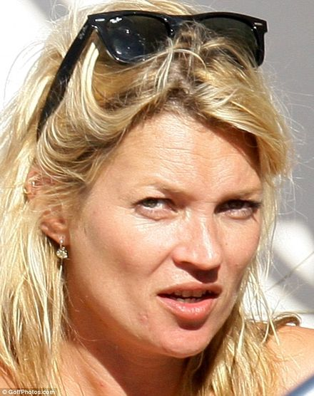 Kate Moss is wearing the effects of plenty of cigarettes and alcohol and the St Tropez sunshine