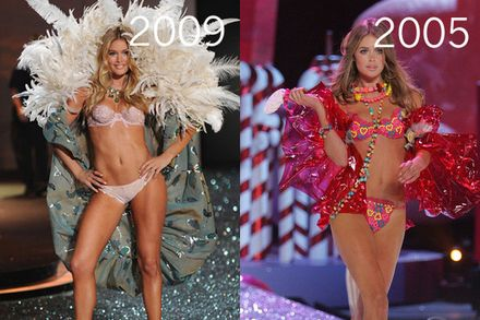 Doutzen Kroes Plastic Surgery
